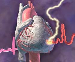 статины при ишемии сердца