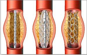 статины стенокардии