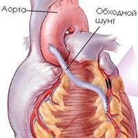 диета 10 после инфаркта миокарда для мужчин