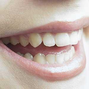 Роль зубов для здоровья